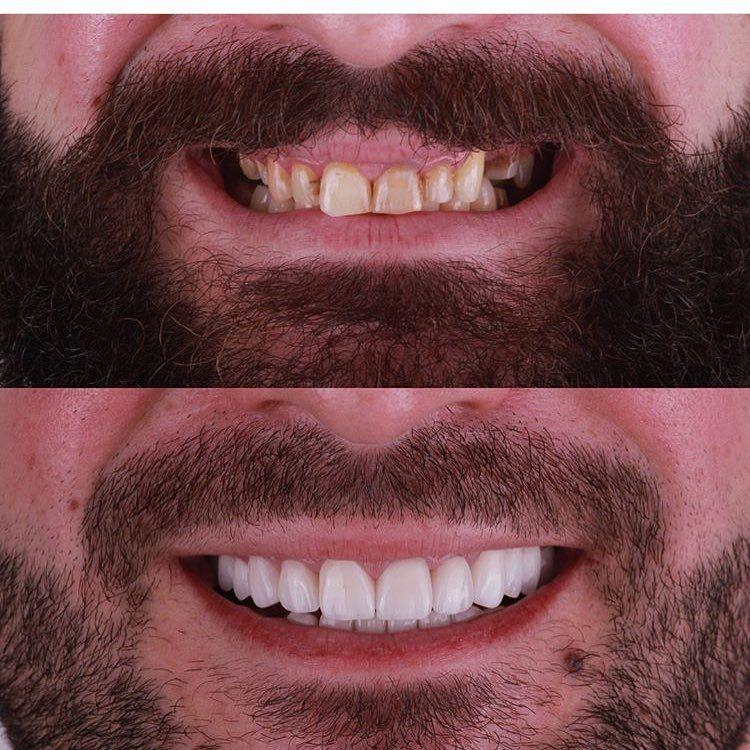 Dental Assistant Duties List%0A The power of  veneers  drrabeedayoub  dentallab  dental  dentista  dent   dentalart  dentistry  dentaltech  dentalwork  dentalcare  dentalassistant