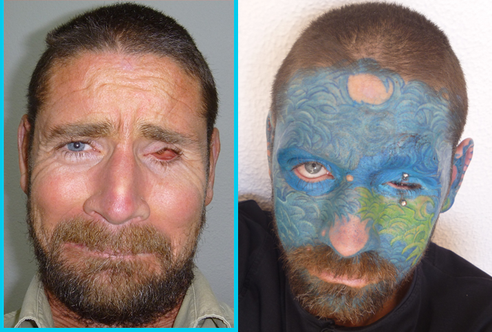 Before and after face tattoos of Juan Carlos Sanz Arniz