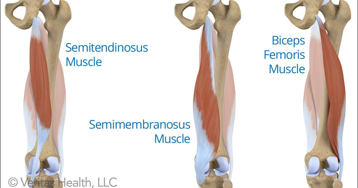 Chronic High (Proximal) Hamstring Tendinopathy