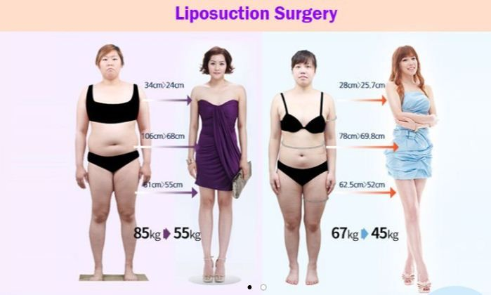 Pin On Before And After Liposuction Photos