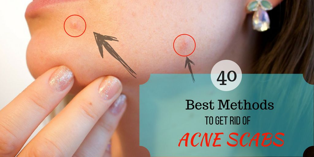 6d0ea367d9a570d17f16079d9df1cb03 - How To Get Rid Of Acne You Picked At