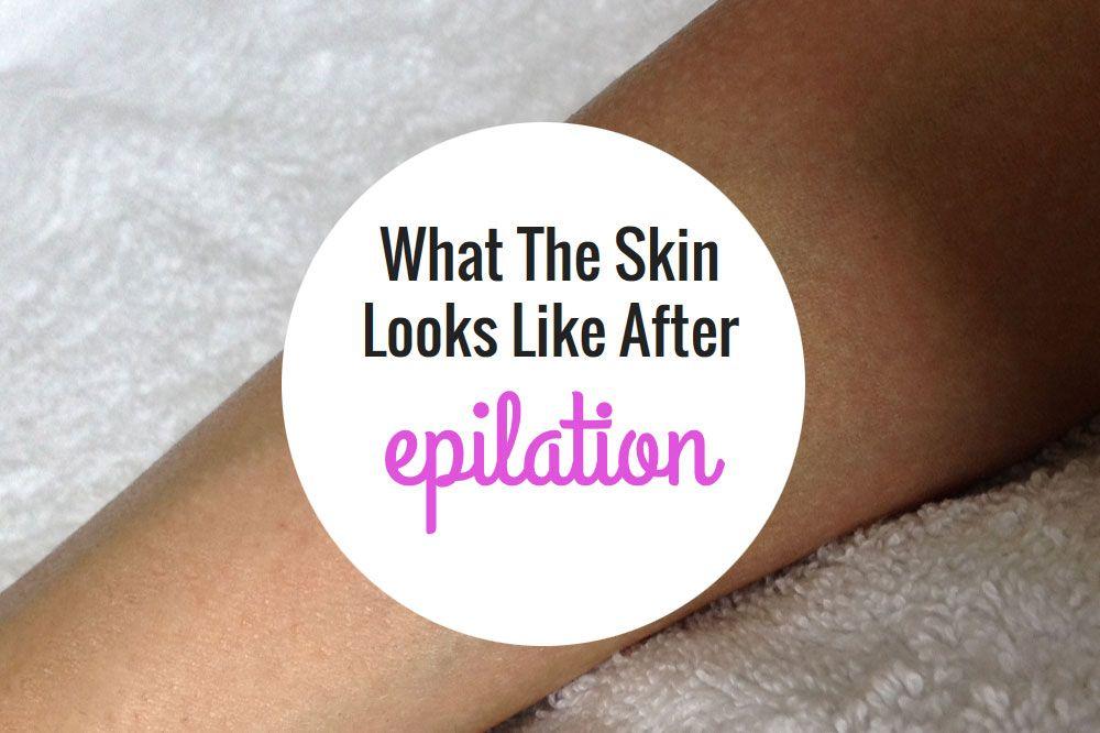 What The Skin Looks Like After Epilation Epilator Central Before And After Care Epilator Tips Epilator Skin