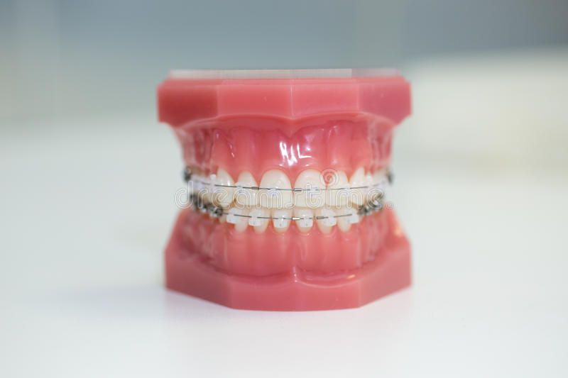 Clear braces invisalign at dentist wesley chapel