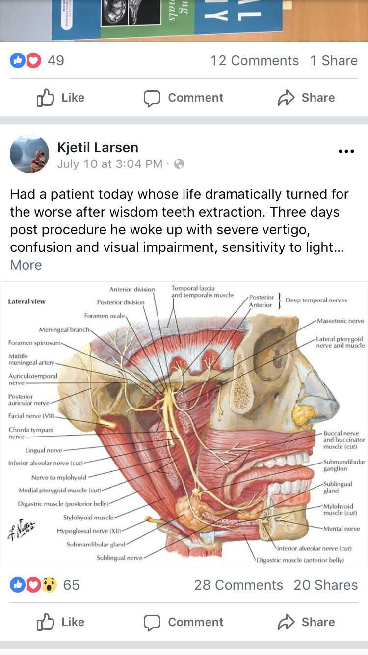 Wisdom tooth extraction image by C Jardell on DIY Wisdom