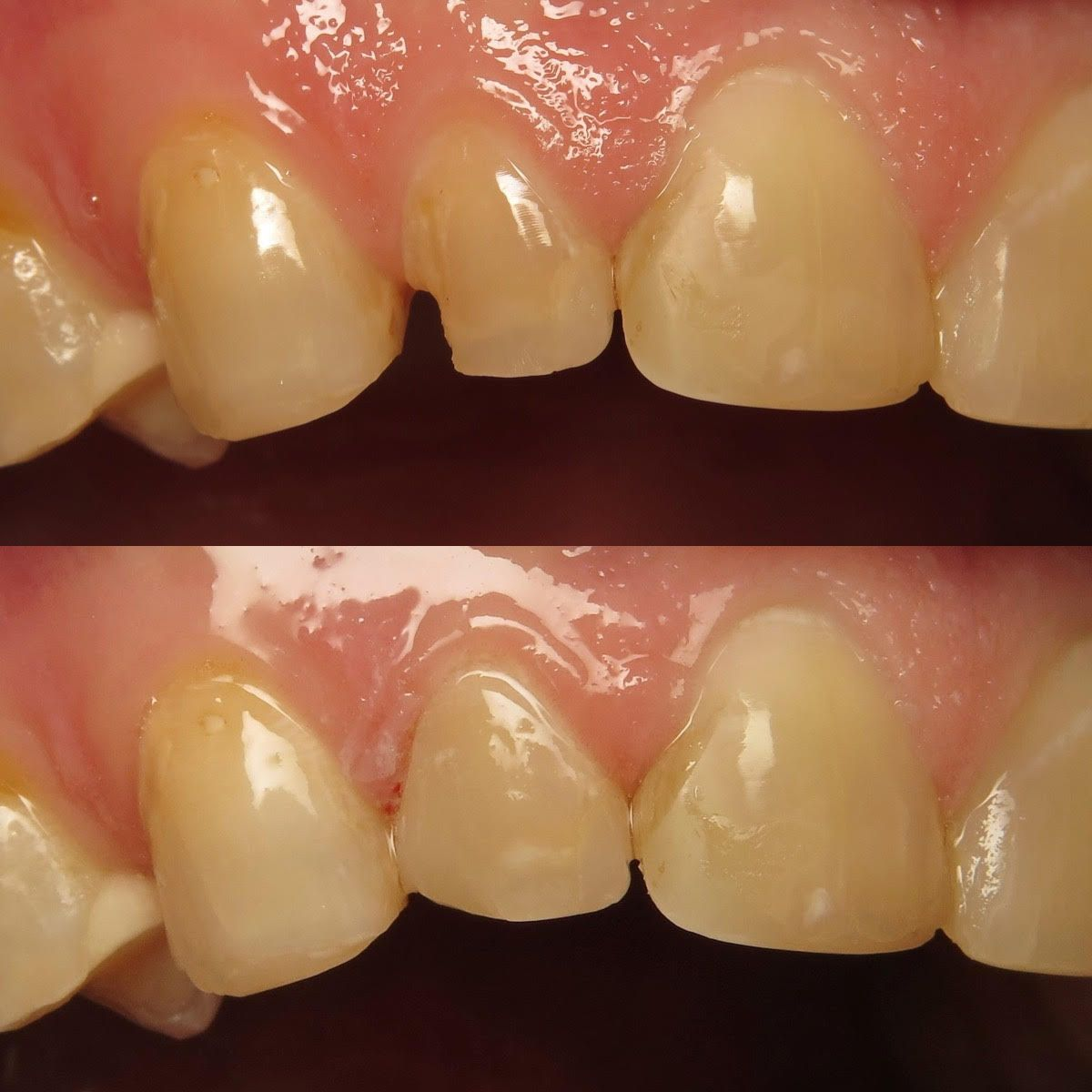 Check out this emergency broken tooth repair done by dr