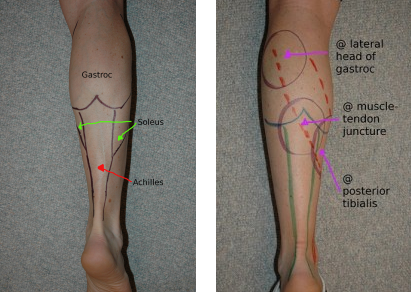 Pin on Achilles and calves