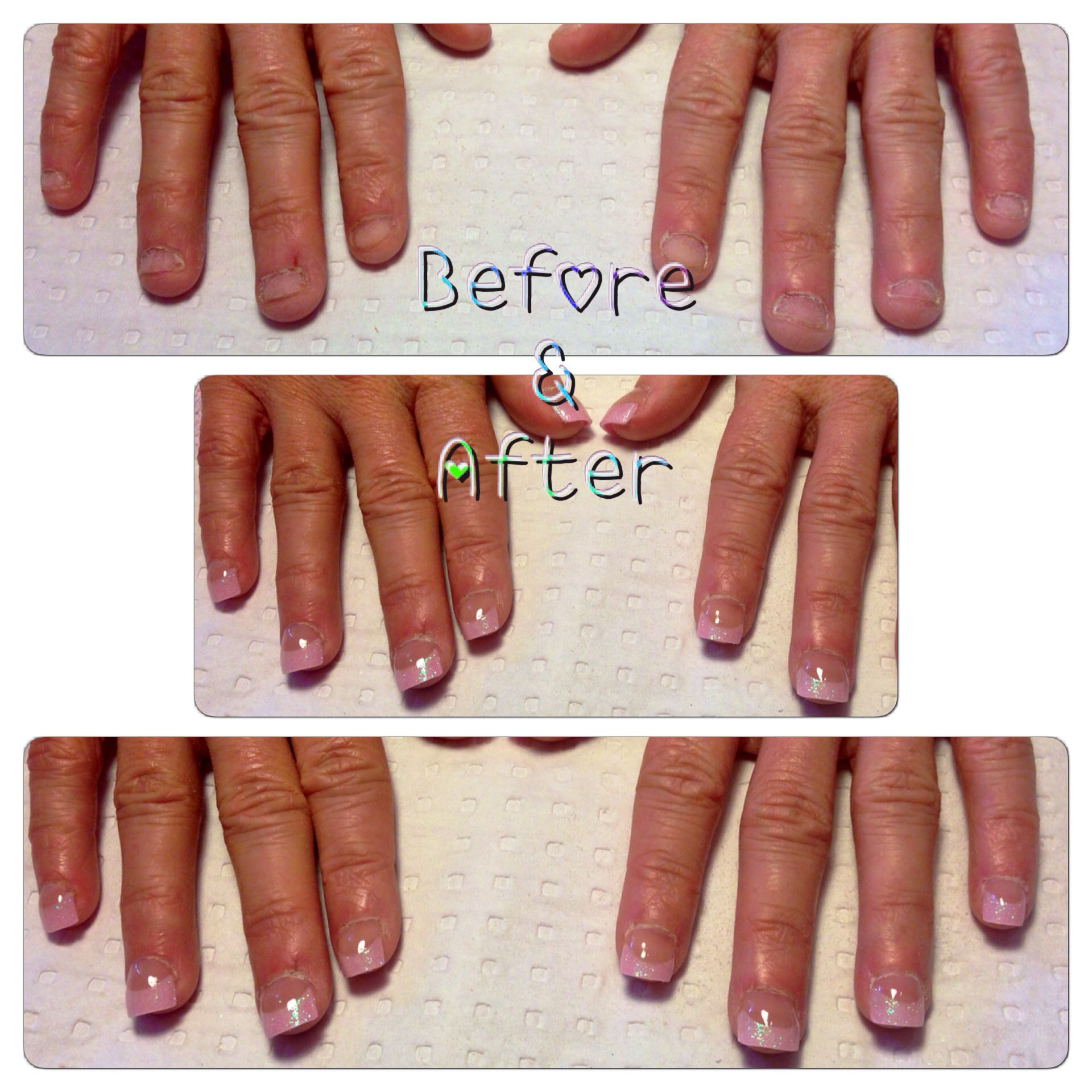 Before and after shot of a nail biter | Acrylic tips ...