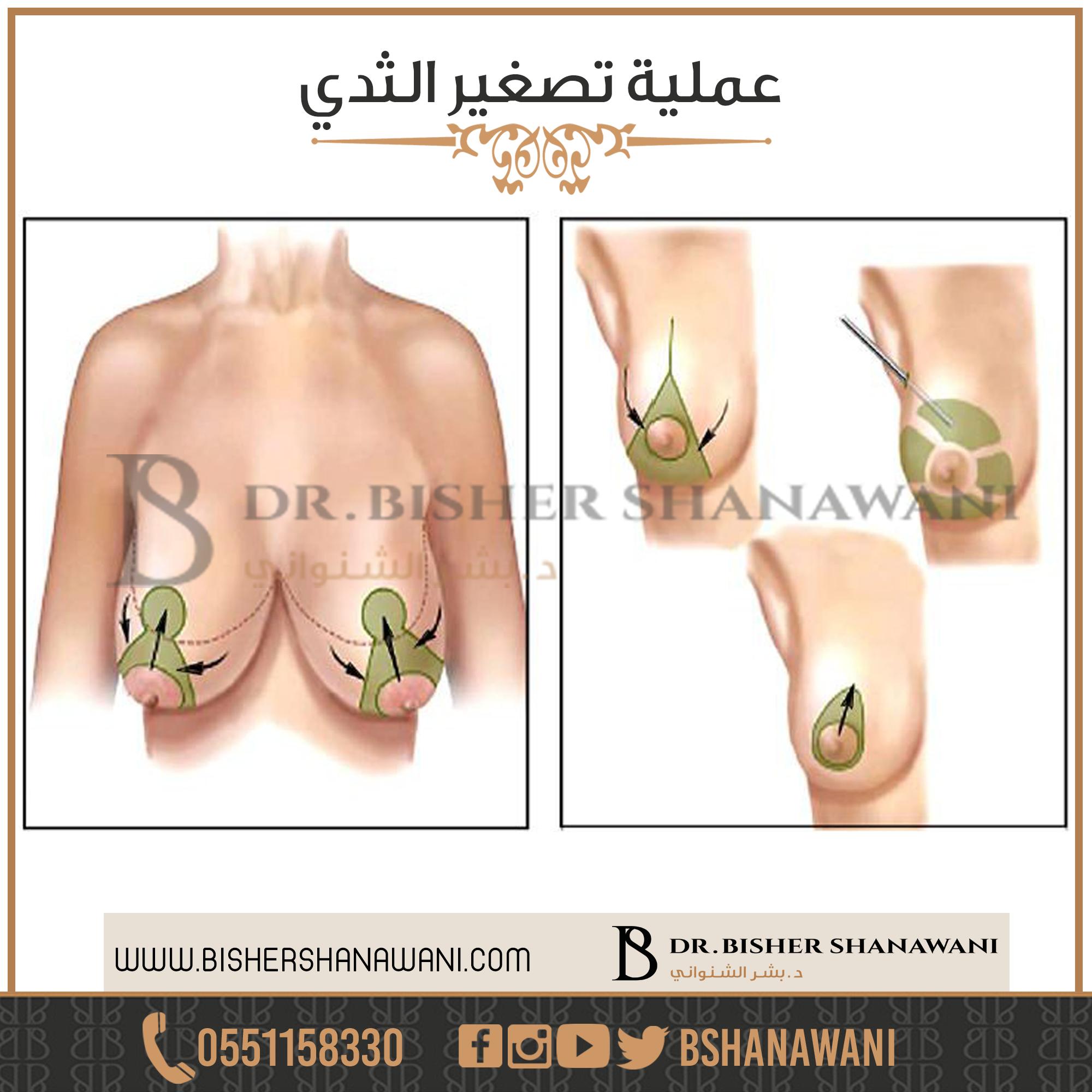 راحة تكبير الثدي هي إحدى الجراحات التجميلية الأكثر شيوعا عملية تصغير الثدي مع د بشر الشنواني شد الصدر يمكن للثدي الكبير جدا أن ي Plastic Surgery Garlic Surgery