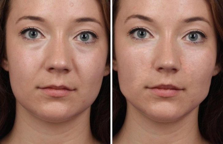 You clearwater facial plastic surgery remarkable, very