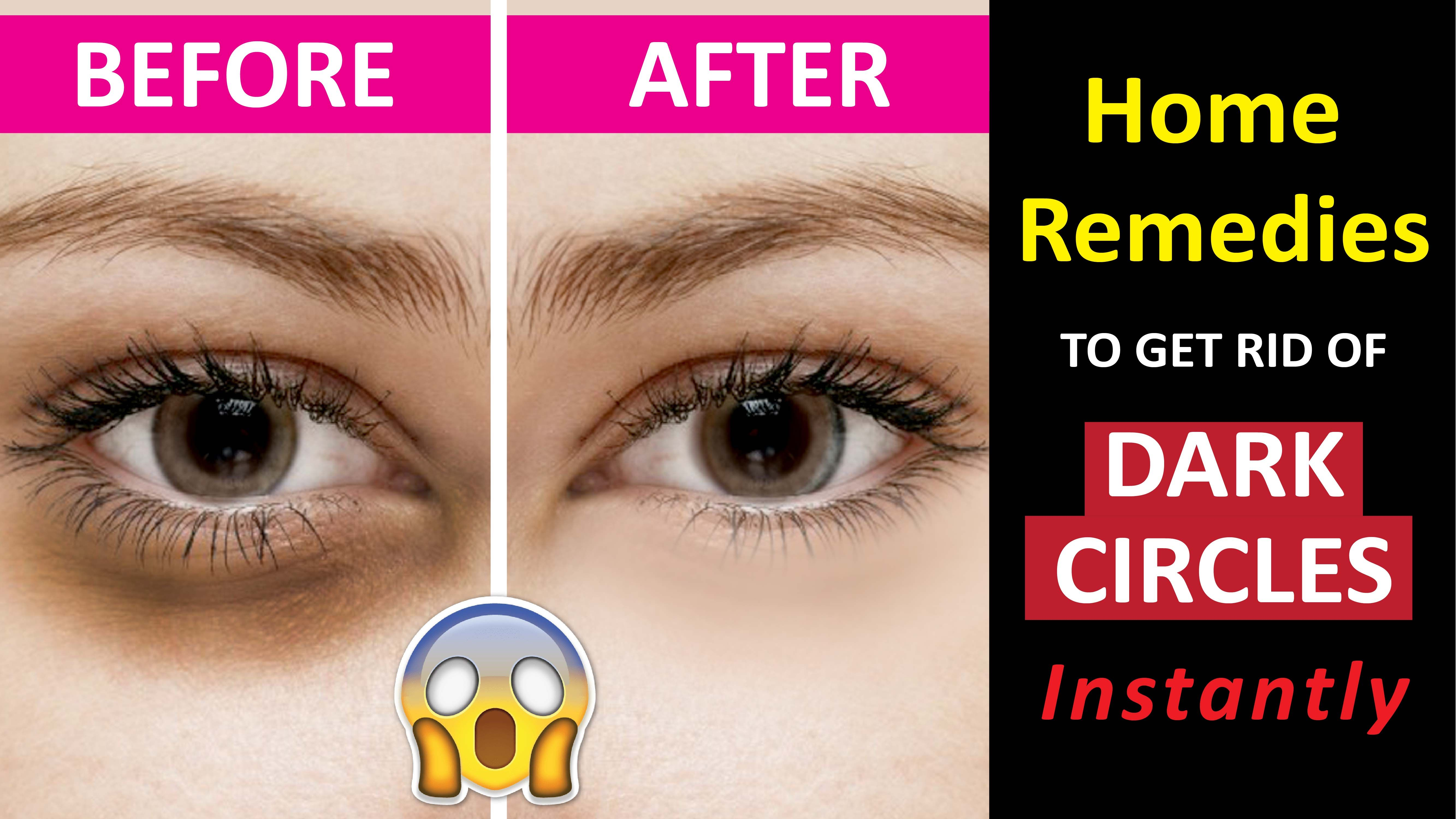 how to get rid of #darkcircles? Tired of those puffed eyes