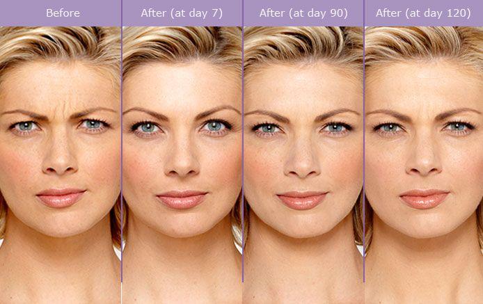 Cascade Medical Boutique Botox treatments | Botox® | Botox cosmetic