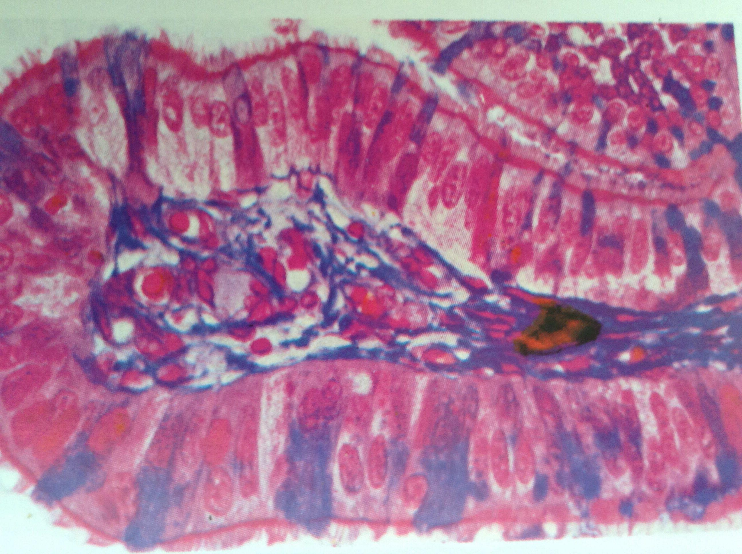Imagen tomada de un pliegue de epitelio cilíndrico ciliado en la trompa de Falopio. Las células teñidas de azul no son ciliadas y tienen función secretora.