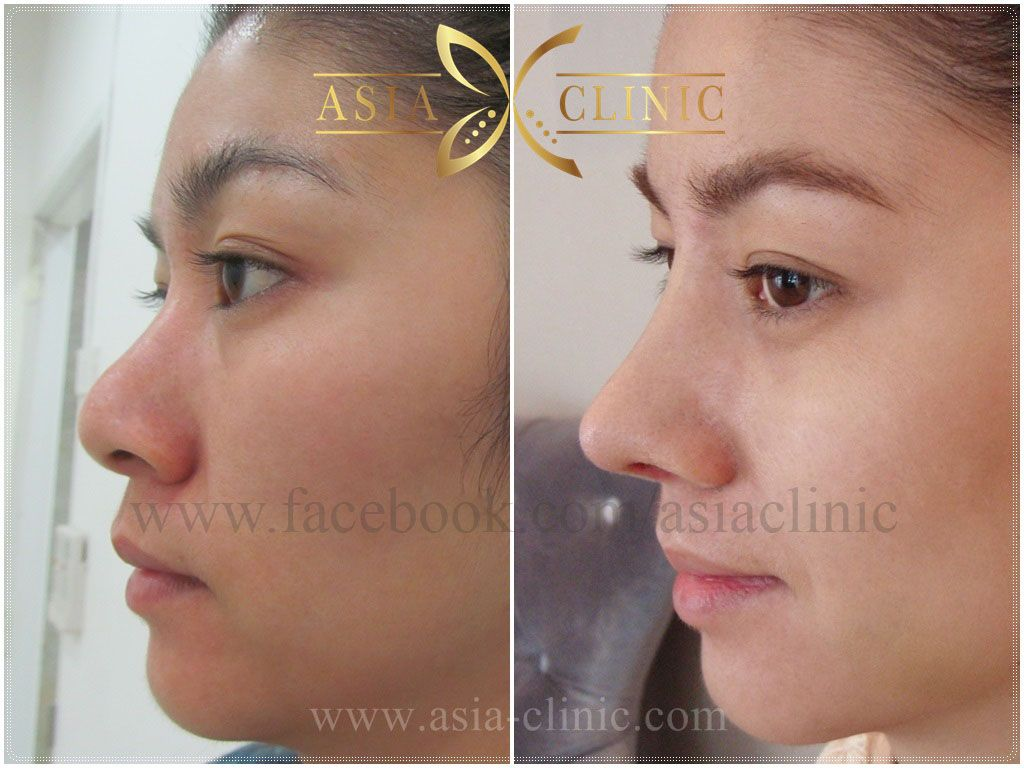 #Rhinoplasty (Nose Surgery) At Asia Cosmetic Hospital