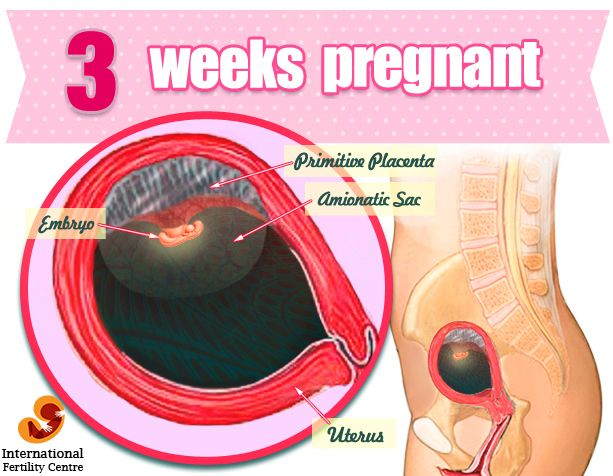 Pin by IFC on Week by Week Pregnancy | 10 weeks pregnant, 4 weeks
