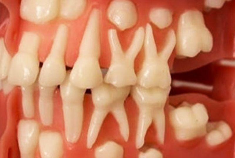Вы можете вырастить новые зубы самостоятельно за 9 недель ...