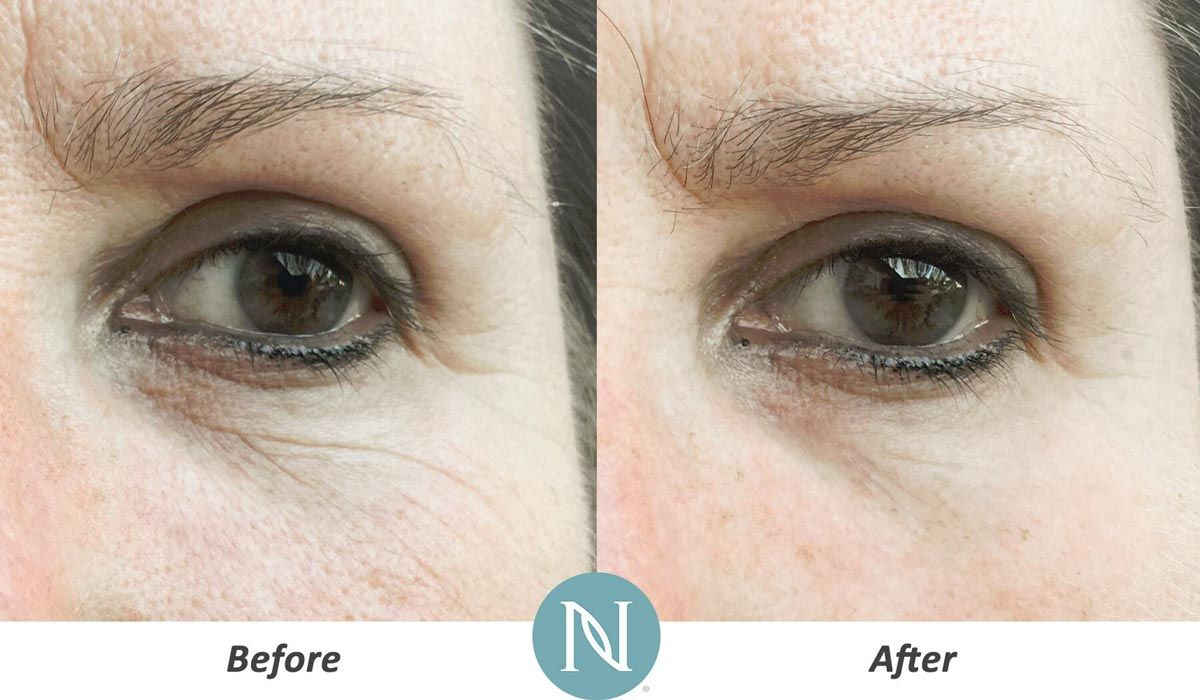 Image result for nerium before and after photos Age