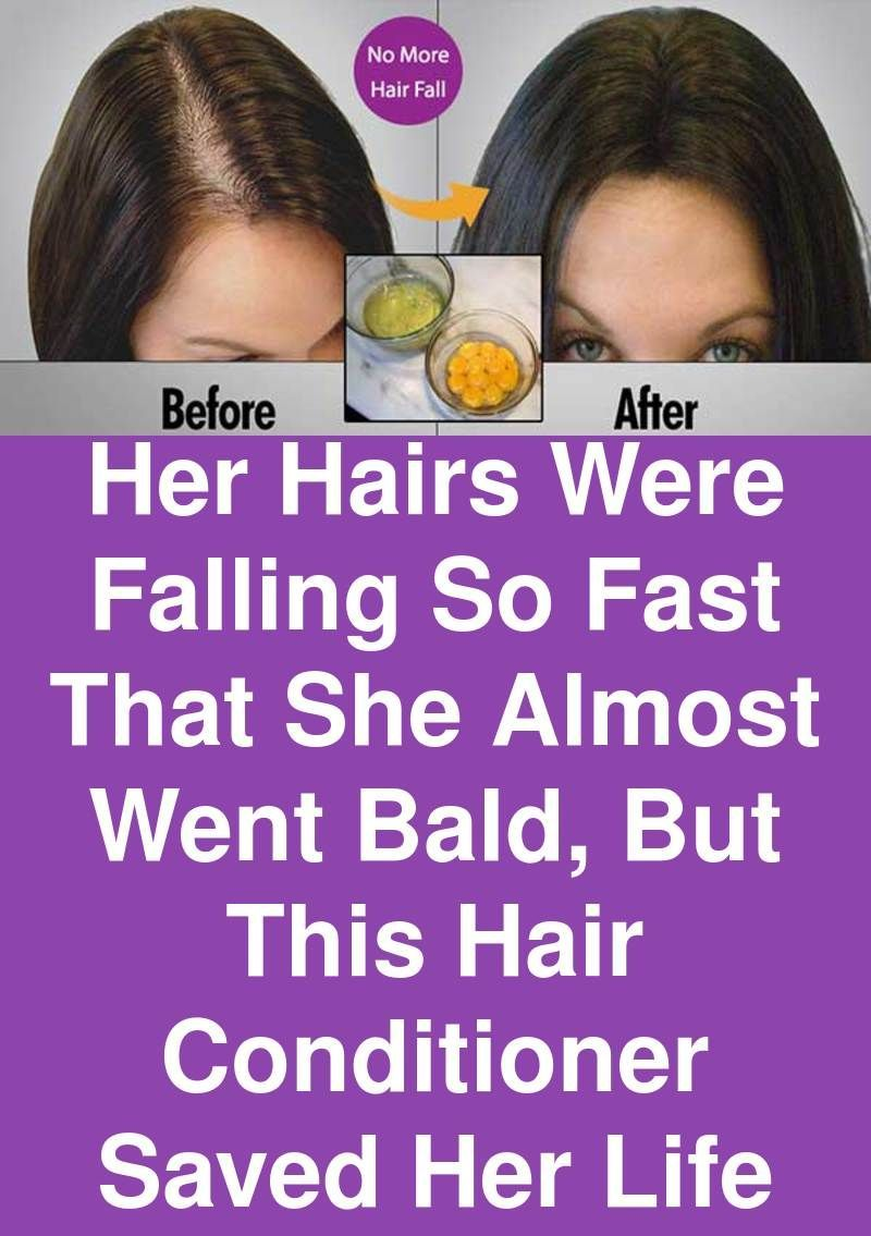 Pin by Syedasiya on Growth | Hair conditioner, Going bald ...