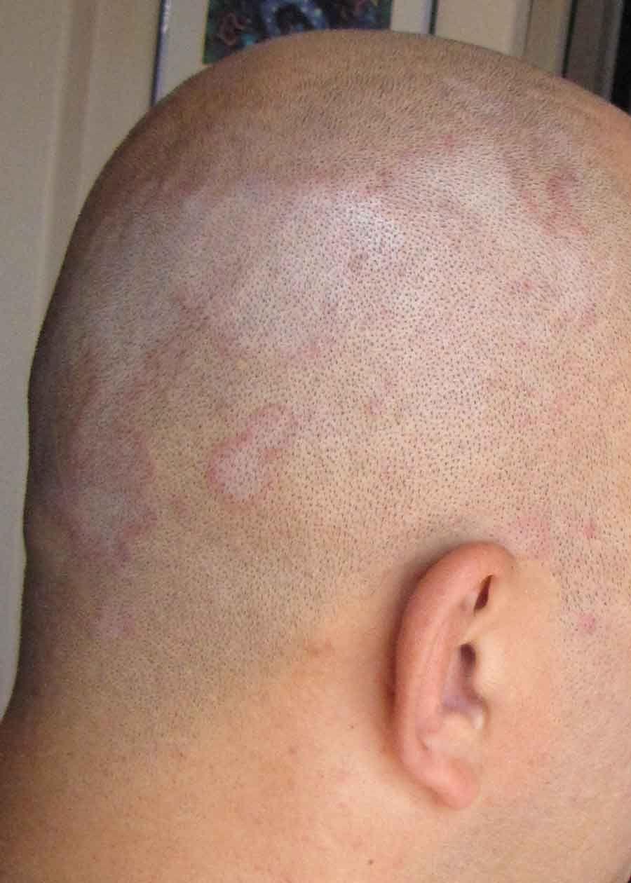 Seborrheic Dermatitis Also Known As Seborrhea Is A Chronic Form Of
