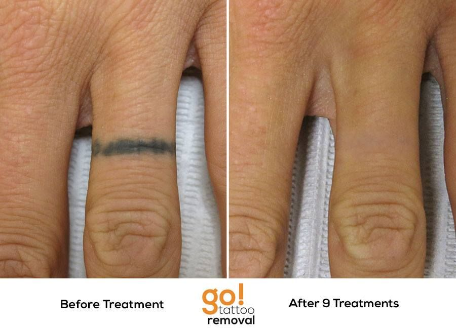 How long will tattoo removal take one of the most for Finger tattoo care instructions