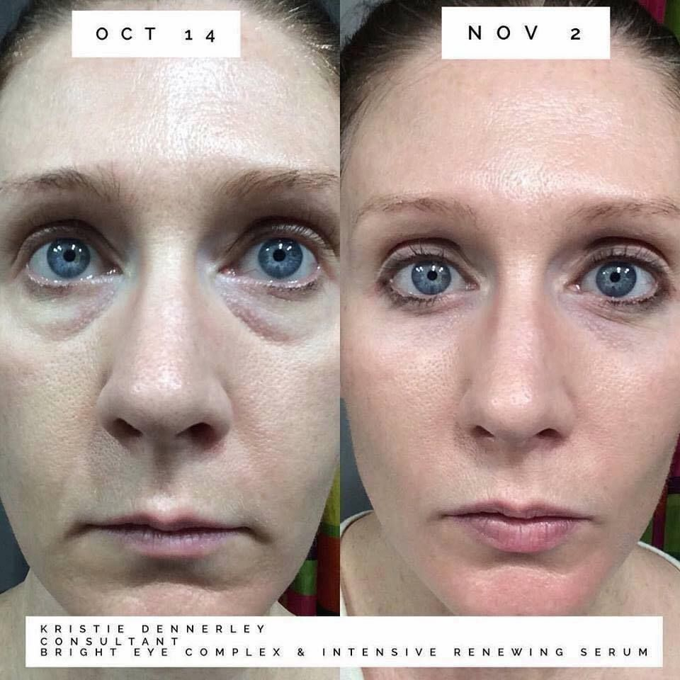 Brighten Up Your Eyes With Bright Eye Complex Good Bye Dark Circles And Puffy Under Eyes After Just 4 Weeks Under Eye Puffiness Dark Under Eye Under Eye Bags