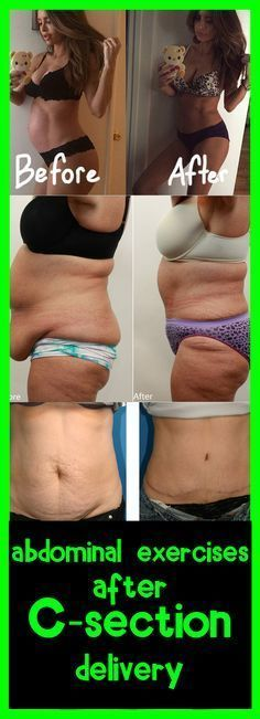 Abdominal Exercises After C Section Delivery After C Section Workout C Section Workout Diastasis Recti Exercises