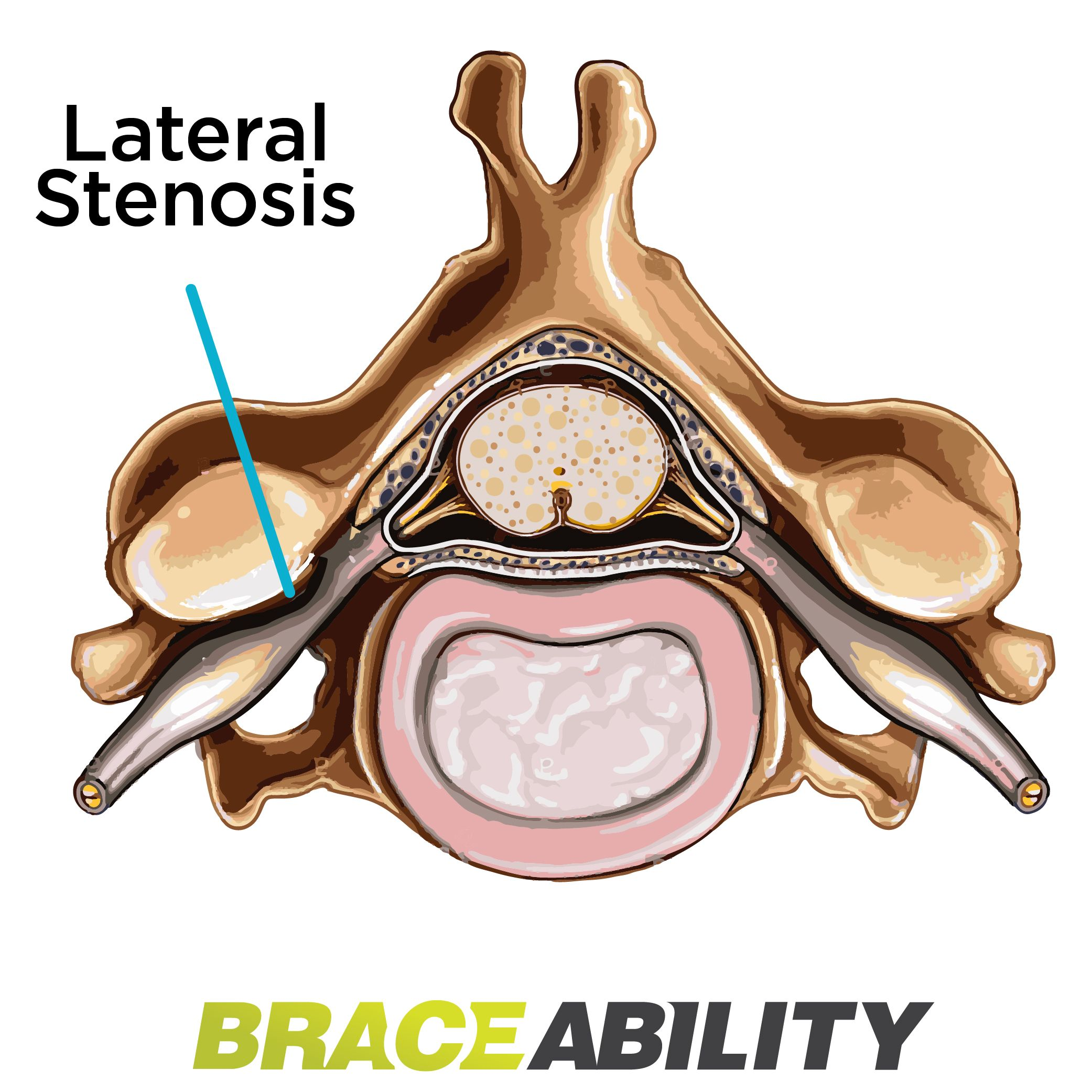 The Difference Between Foraminal Central Lateral Recess Stenosis