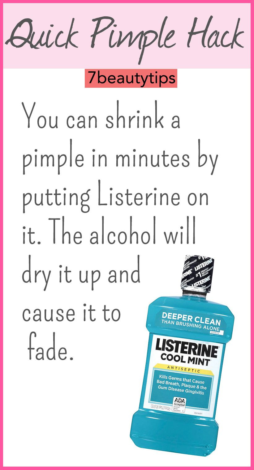 Beauty Hacks Every Girl Should Know  Listerine and Pimple