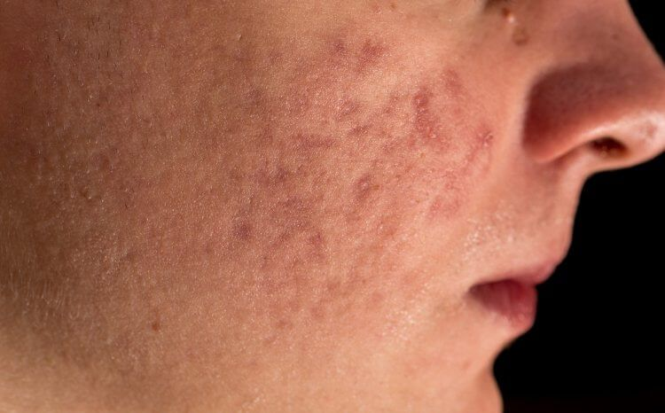 9 tratamientos naturales y consejos para atenuar las cicatrices dejadas por el acné