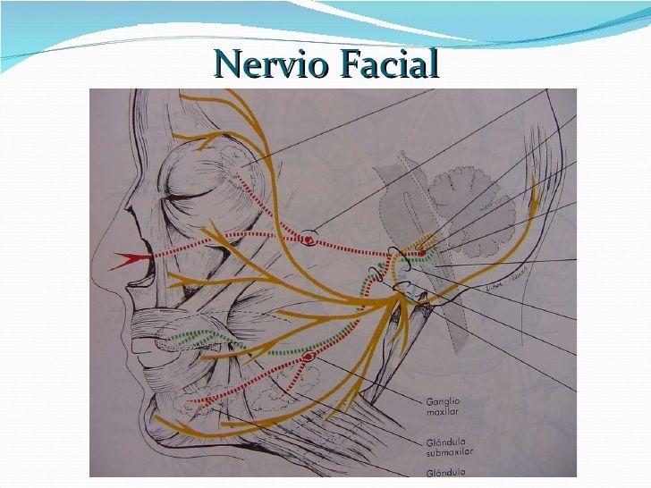 neurinoma del acustico y nervio facial - Buscar con Google | N ...
