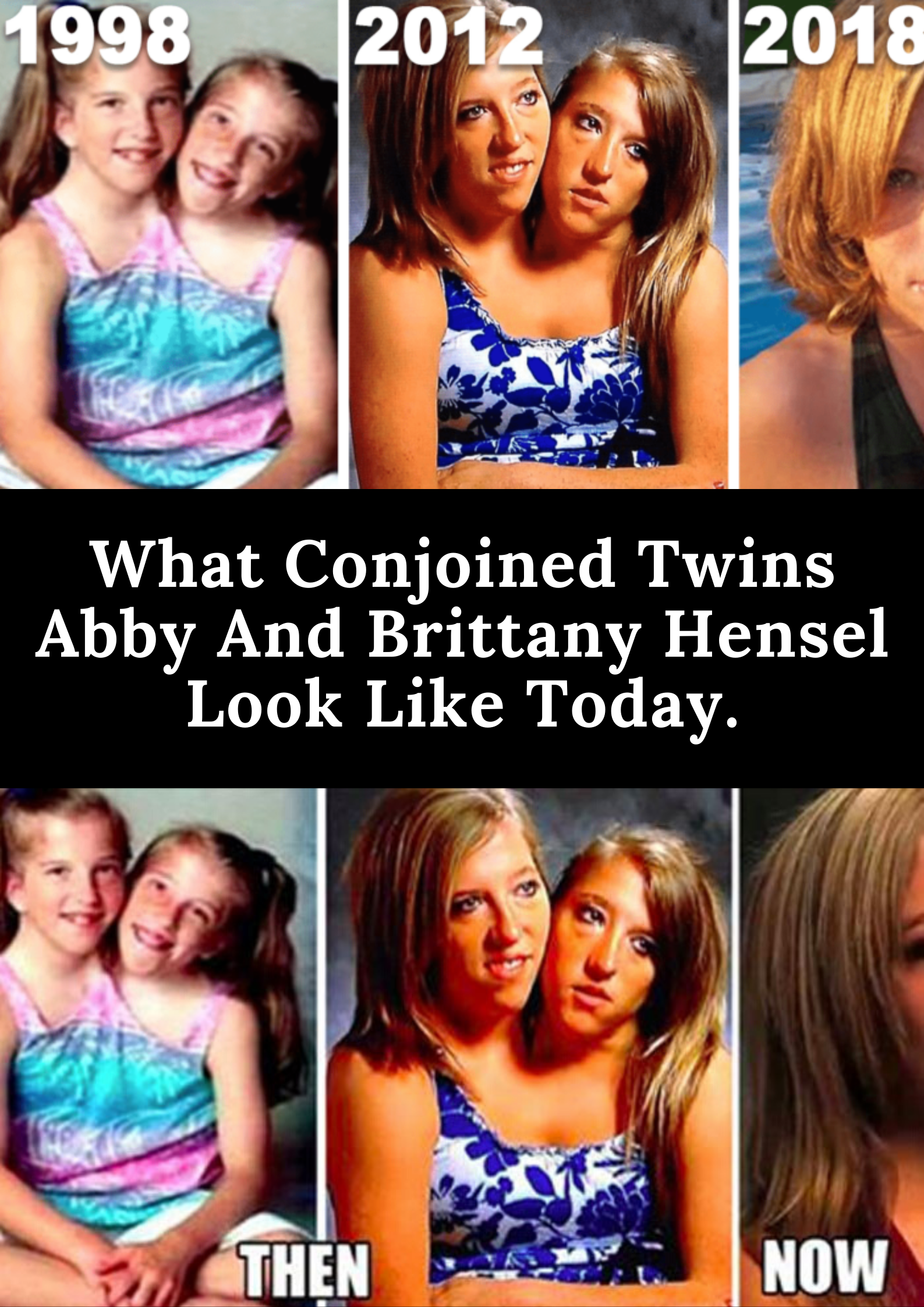 Abby and marriage conjoined twins brittany The Love