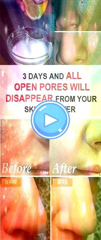 Days and All Open Pores Will Disappear From Your Skin Permanently 3 Days and All Open Pores Will Disappear From Your Skin Permanently 3 Days and All Open Pores Will Disap...