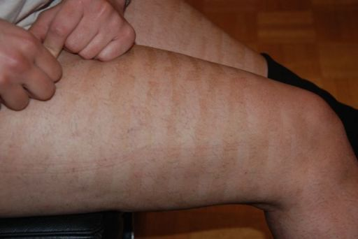 Side Effects of Laser Hair Removal | laser hair removal blog