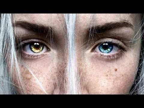 Fascinating Vid About Heterochromia What It Is Causes