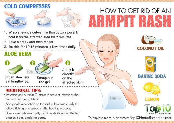 6d67e75045d8a67e9455cd640f89899e - How To Get Rid Of Sweat Rash Under Arms