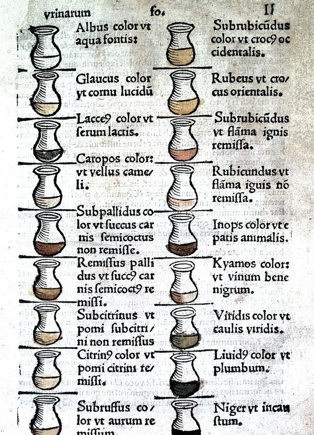 What Your Urine Says About Your Health (Medieval Version - sample urine color chart