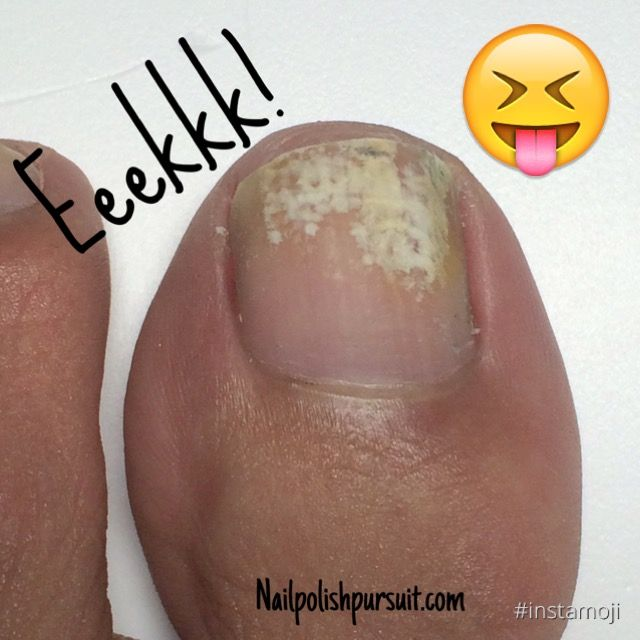 the definitive guide to removing nail fungus