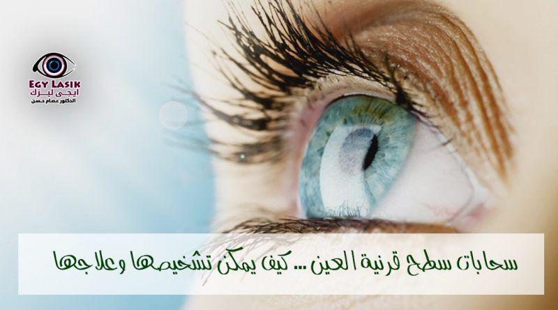 سحابات سطح قرنية العين العميقة والبسيطة كيف يمكن تشخيصها وعلاجها Egylasik Lasik