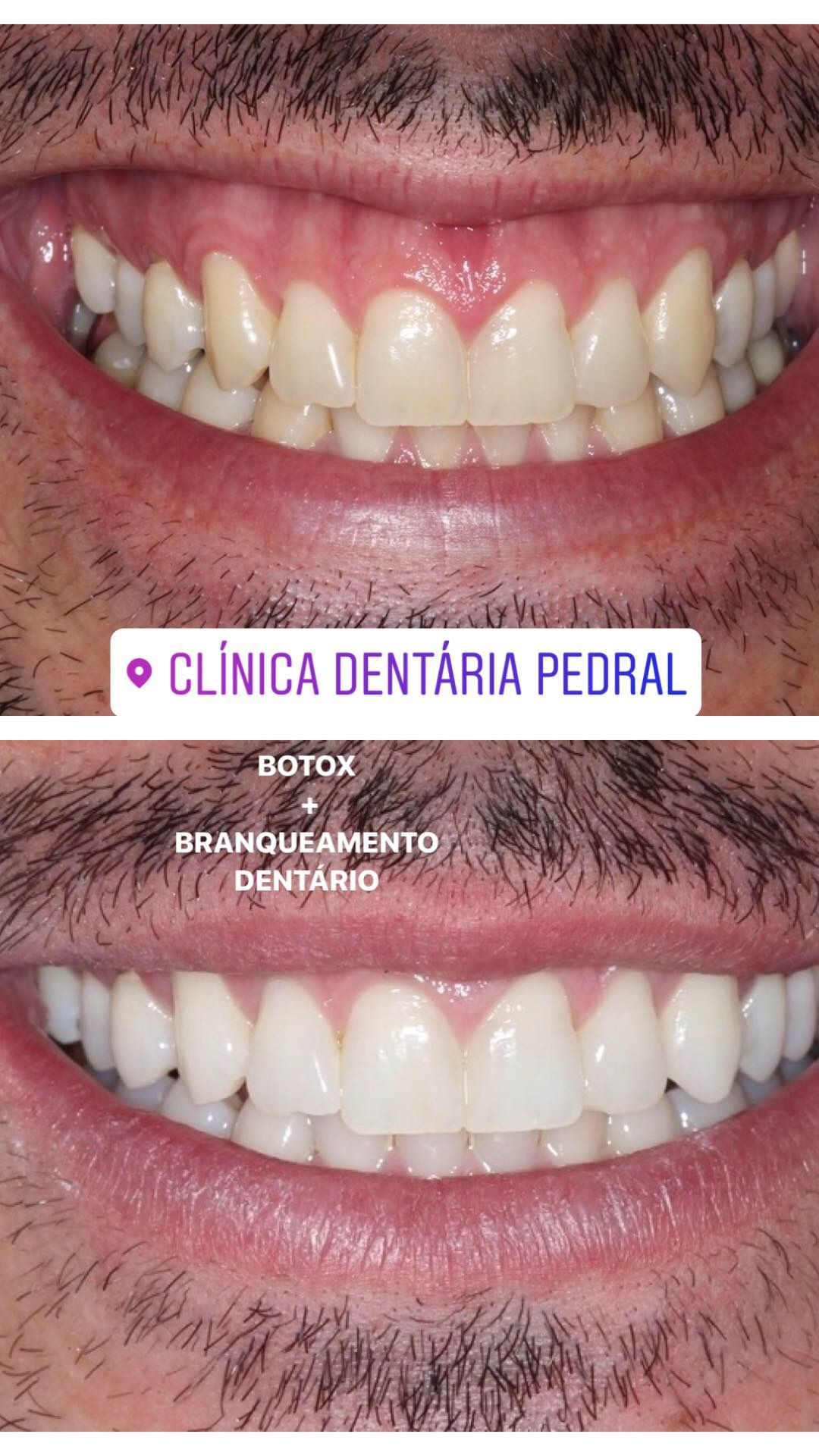 Tratamento Multidisciplinar Branqueamento Dentario Em Consultorio