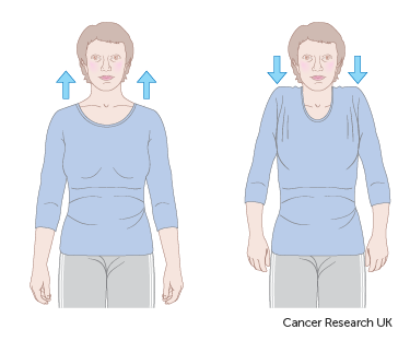6d83018be9dde9c2807efc2d87ec8f86 - How Long Does It Take To Get Over Breast Cancer Surgery