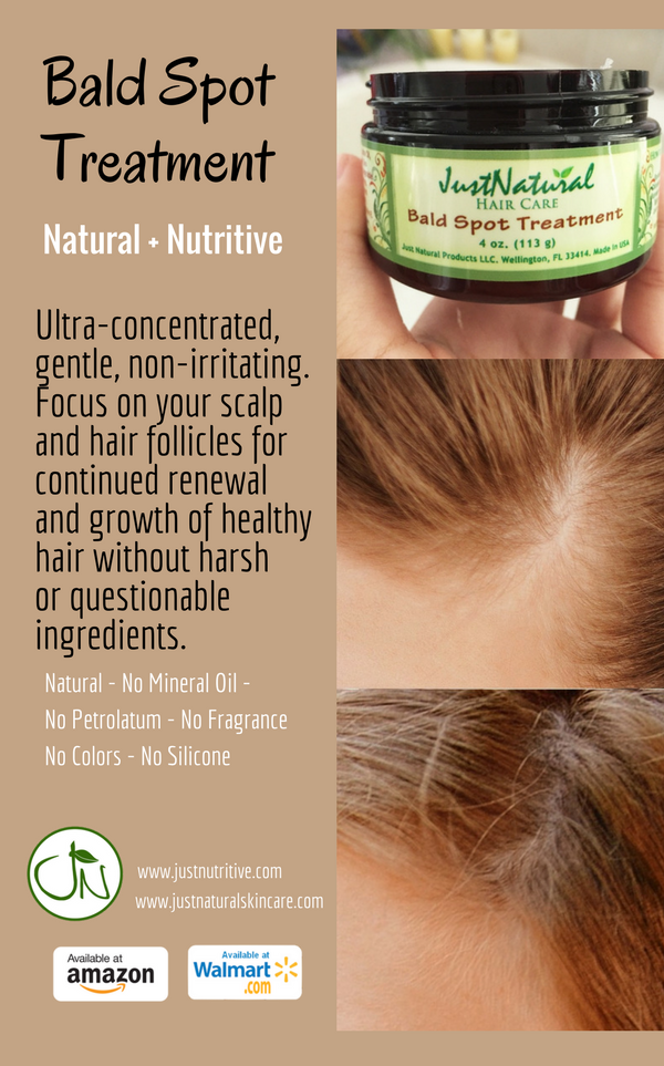 Use when experiencing early stage male or female baldness