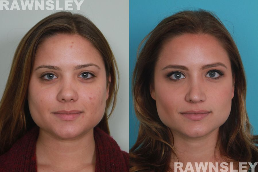Rhinoplasty Before & After Rawnsley Plastic Surgery