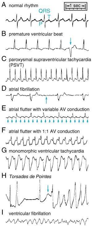 Understanding Heart Arrhythmias   Heart Rhythm Consultants