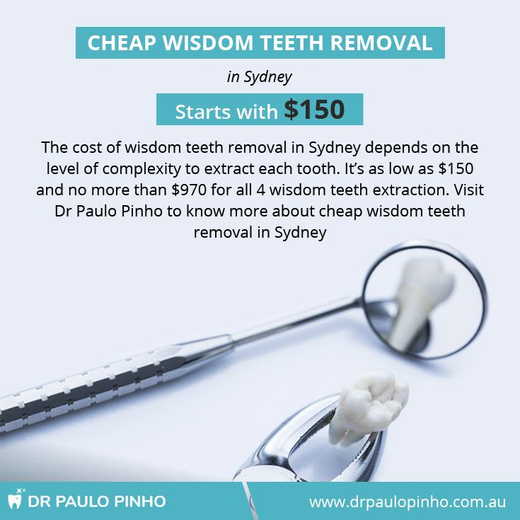 The Cost Of Wisdom Teeth Removal In Sydney Depends On The