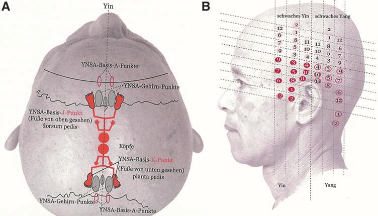 Yamamoto S New Scalp Acupuncture Ynsa Basic Brain And Sensory Download Scientific Diagram Acupuncture Yamamoto Accupuncture