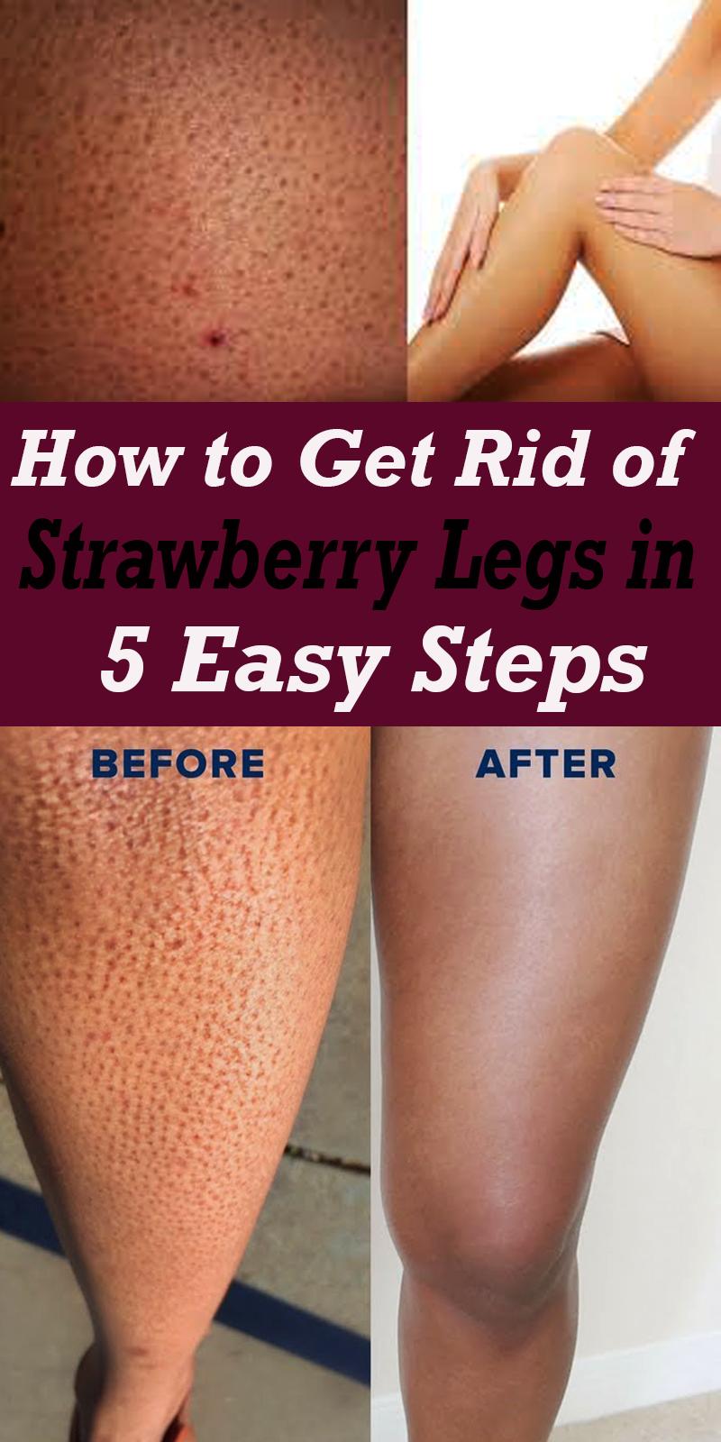 6d8f584db5cf08733cbdf252f3a2b1e3 - How To Get Rid Of Strawberry Spots On Legs
