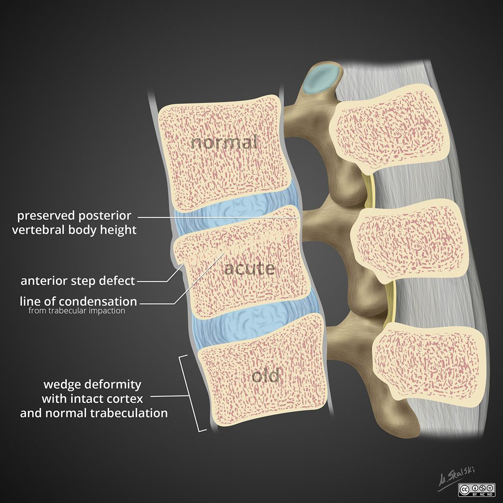 Spinal compression fracture acute vs old Radiology Case