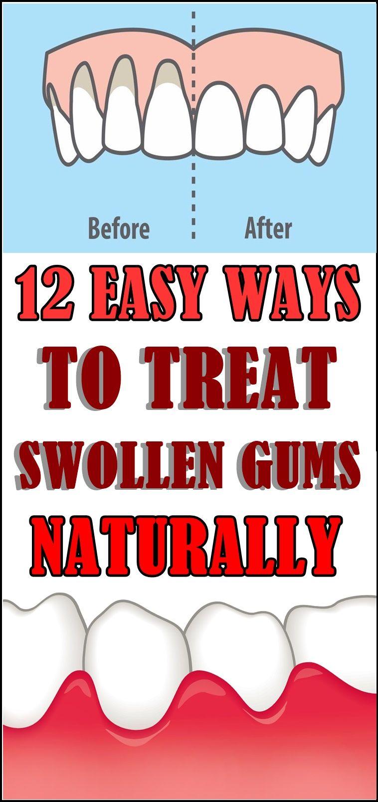 12 EASY WAYS TO TREAT SWOLLEN GUMS NATURALLY Swollen gum