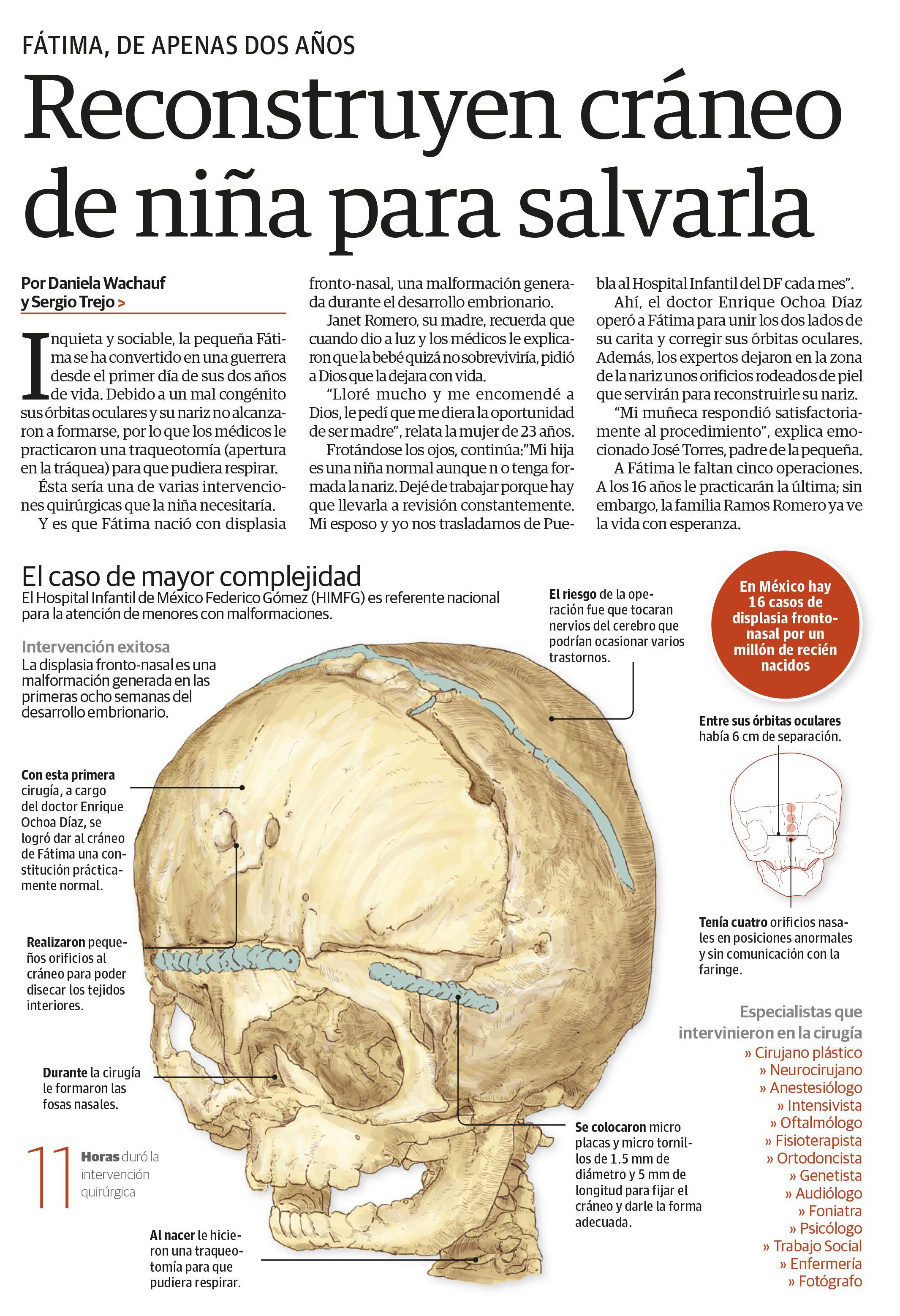 Cranial reconstruction   EL CUERPO HUMANO   Pinterest   El cuerpo ...