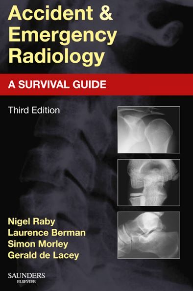 Accident And Emergency Radiology A Survival Guide Pdf