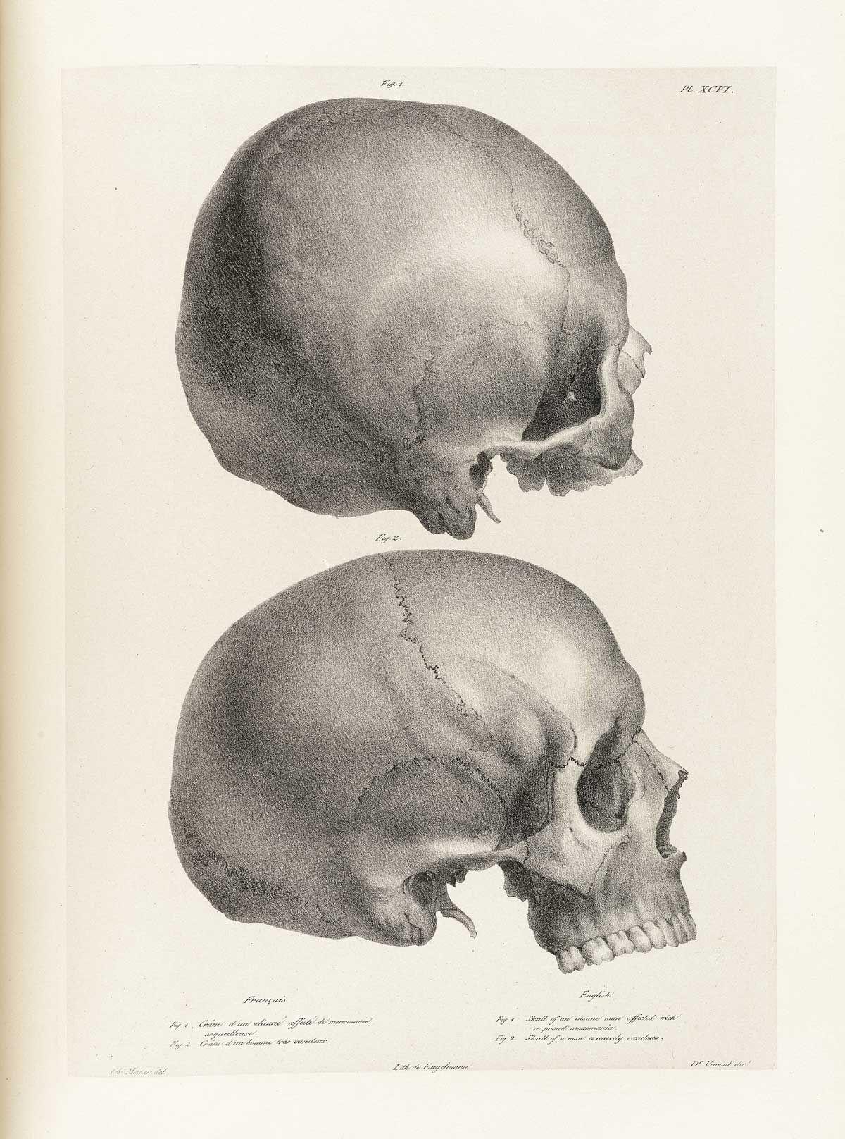 Pin by Mike Rickest Palos on Skull anatomy | Pinterest | Skull ...